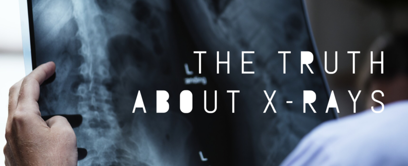 The Truth About X-Rays